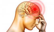 سردرد میگرنی,آلرژی فصلی,اکسیژن درمانی,سکته مغزی,shabnamha.ir,شبنم همدان,afkl ih,شبنم ها