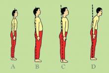 ساختار قامتی دانش آموزان,کمبود ویتامین D,ورزش,shabnamha.ir,شبنم همدان,afkl ih,شبنم ها;